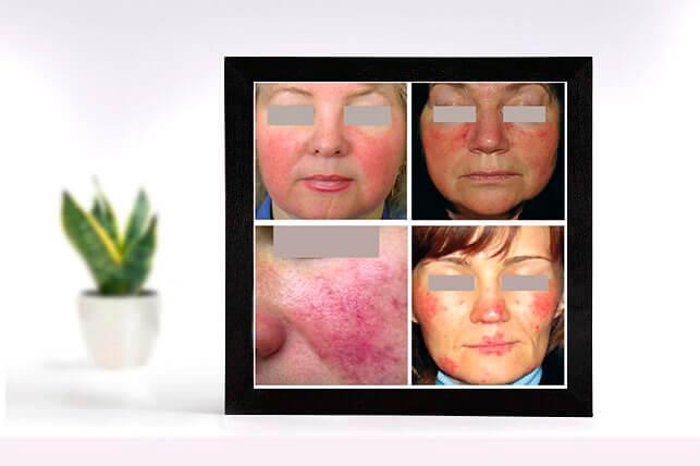Чувствительная кожа лица: фото - розацеа