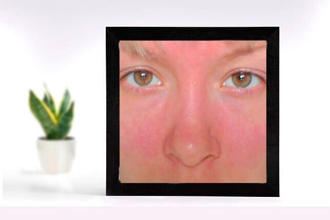 Чувствительная кожа лица: фото – аллергия на холод