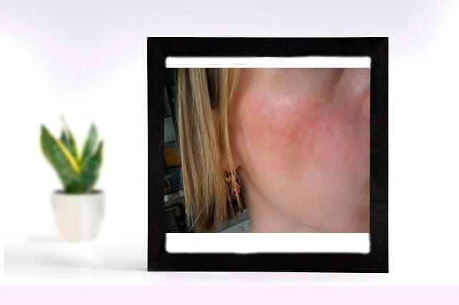 Чувствительная кожа лица: фото – сосудистая сетка